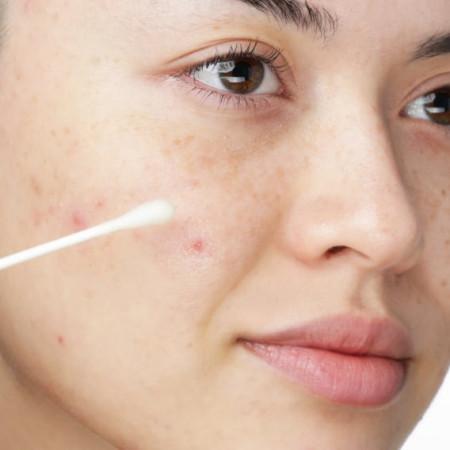 Tratament concentrat pentru comedoane acneice (coșuri)