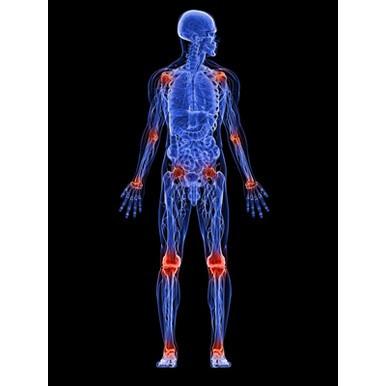 Artrita reactiva