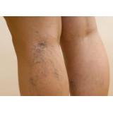 Leg Vein Essentials - Esentiale Pentru Picioare Reci Obosite si Varice 60 capsule DRcaps Swanson