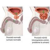 Complex Naturist Avansat pentruTractul Urinar Masculin - Prostata