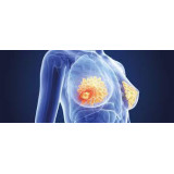 Pachet 3x Graviola Annona Muricata Antitumoral Anticancer 180 capsule Livrare Gratuita Prospect