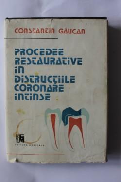 Constantin Gaucan - Procedee restaurative in distructiile coronare intinse (editie hardcover)