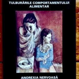 Mircea Alexandru Birt - Tulburarile comportamentului alimentar. Anorexia nervoasa. Bulimia nervoasa