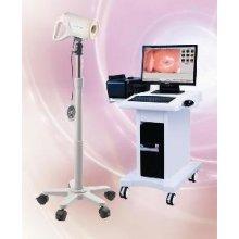 Dostupno Izuzetna Cena Digitalni Video Kolposkop Altion AC 4000