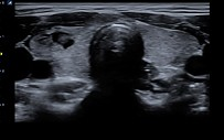 Alpinion E-Cube 8 ultrazvucn aparat 2D/3D/4D snimanja