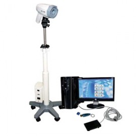 Digitaln Kolposkop BLT 870 SONY Sistem Integrisane Slike