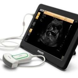 Philips- VisiQ portabl ultrazvucni sistem