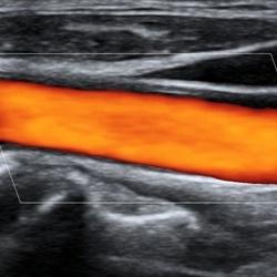 Mindray M-9 Portabl ultrazvucni aparat
