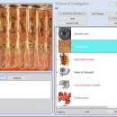 SNG-9D 9D-NLS Diagnoza si tratament, software in engleza si romana