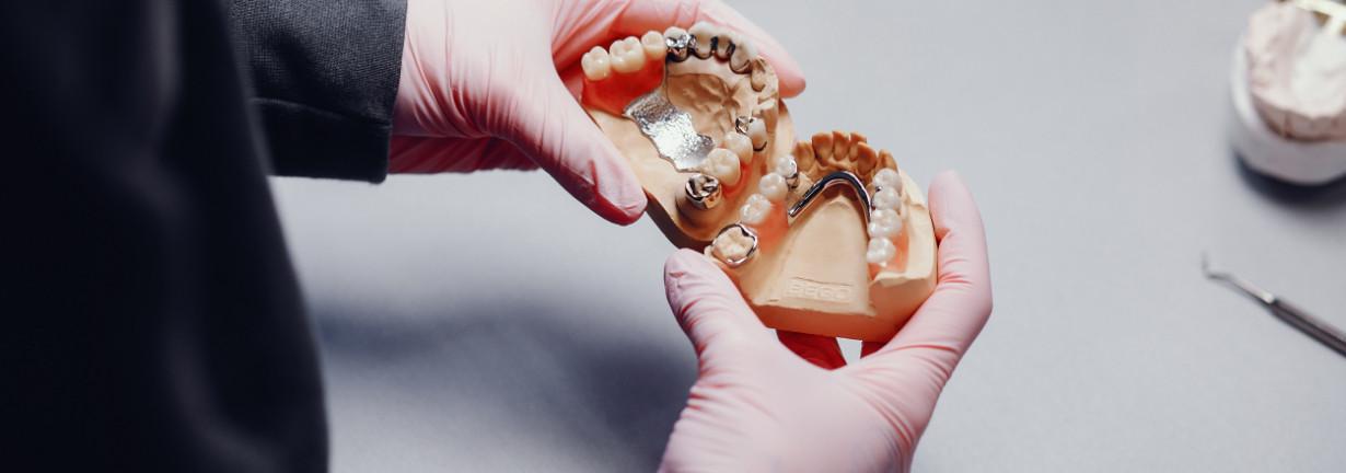 Sunt implanturile dentare dureroase?
