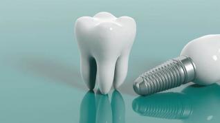 Pot fi implanturile dentare realizate în aceeași zi?