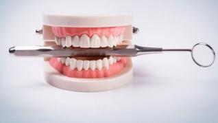 Înlocuiți-vă dinții în etape cu ajutorul implanturilor dentare