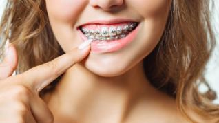 Adulții pot purta aparat dentar?
