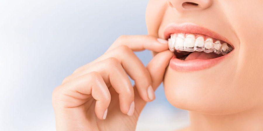 Aparatul dentar Invisalign