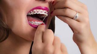 Moduri prin care îți poți păstra aparatul dentar curat
