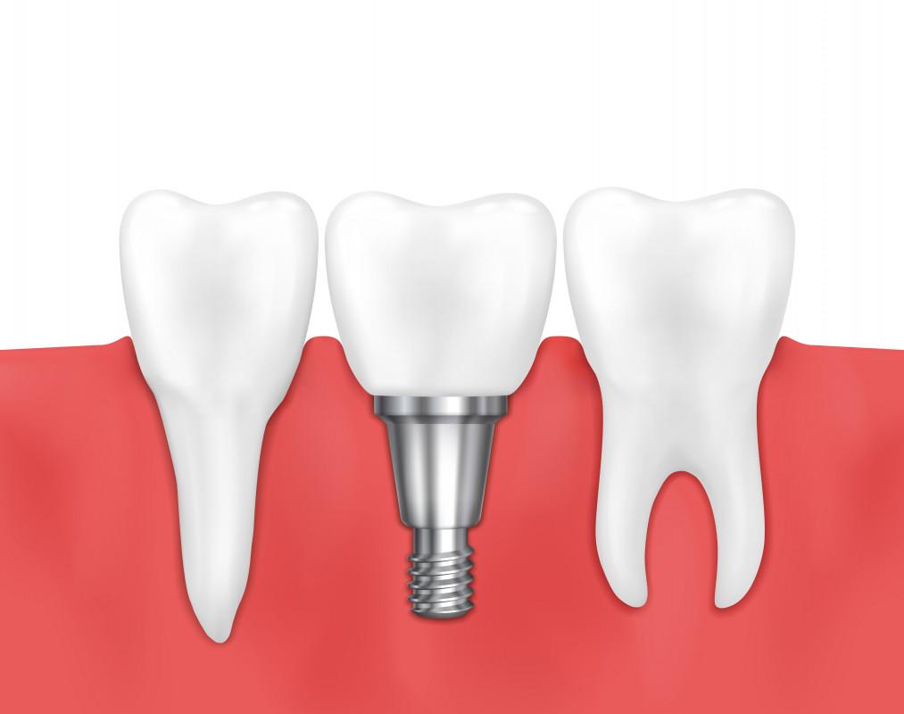 Restaurarea dentară