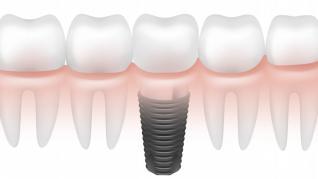 Coroanele dentare