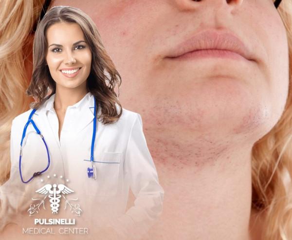 IRSUTISMO EPILAZIONE MEDICA : MENTO + PLATISMA 12 sedute