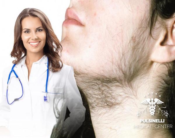 IRSUTISMO EPILAZIONE MEDICA LASER : VISO+ BAFFETTO + COLLO ANTERIORE 12 sedute