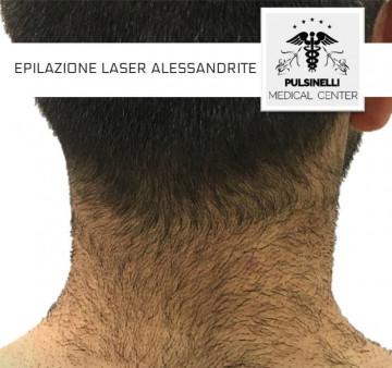 EPILAZIONE LASER ALESSANDRITE COLLO POSTERIORE UOMO