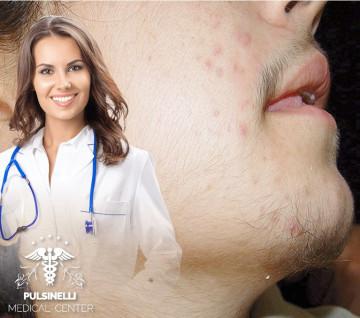 IRSUTISMOEPILAZIONE MEDICA LASER : VISO+ BAFFETTO + COLLO ANTERIORE 6 sedute