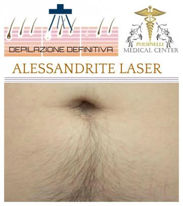 LINEA ALBA  CON LASER ALESSANDRITE