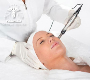 MEDICAL MICRONEEDLING VISO