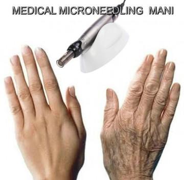 RINGIOVANIMENTO DELLE MANI CON MEDICAL MICRONEEDLING
