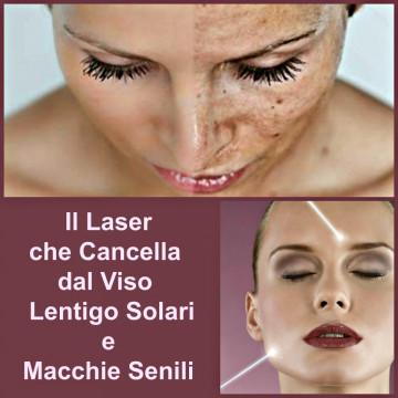 Laser Alessandrite per Lentigo Solari e Macchie Senili