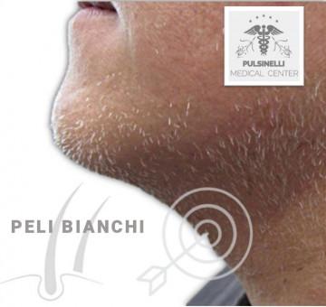 EPILAZIONE DEFINITIVA PER I PELI BIANCHI
