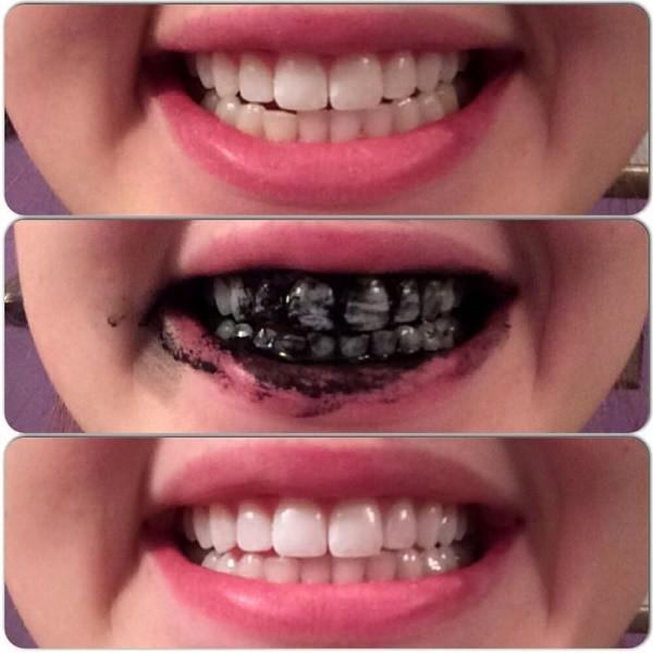 Izbeljivanje zuba u ordinaciji cena