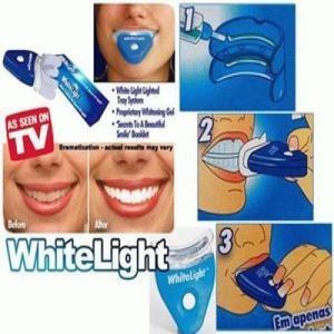 Kako skinuti kamenac sa zuba bez zubara