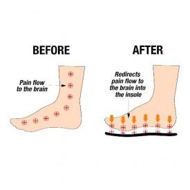 Magnetni akupresurni ulošci za stopala