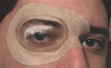 Ortolux – Protecţie oculară sterilă, autoadezivă, cu valvă transparentă