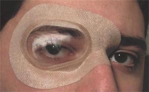 Ortolux Air – Protecţie oculară sterilă, autoadezivă, cu valvă transparentă găurită