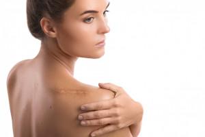 Plasturi cicatrici Resolve Skin SPF50+, 7x5 cm, 3 bucăți