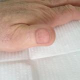 curs pat unghial tatuat