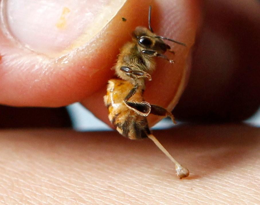 tratamentul albinelor de mușcătură varicoză