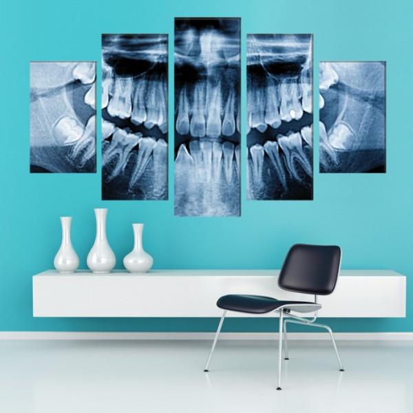 Multicanvas Radiografie Dentara X-RayTH7
