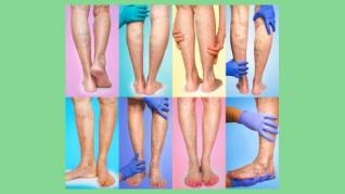 Varicele de la picioare nu trebuie neglijate