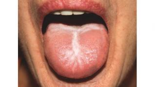 Candidoza poate afecta multe parti ale corpului