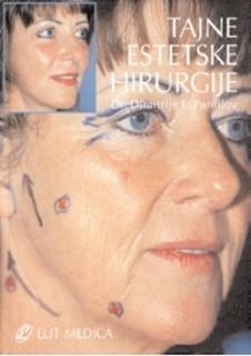 Tajne estetske hirurgije, cinjenice i fascinacije, mogucnost i granice,2006 god.