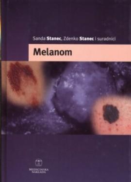 Melanom Sanda Stanec Medicinska Naklada  2006 godina