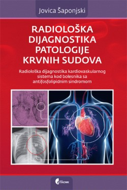 Radioloska dijagnostika patologije krvnih sudova Jovica Saponjski