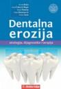 Dentalna erozija,autor:Hrvoje Brkic,Skolska knjiga