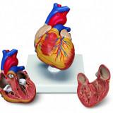Direktna Podrska Model Ljudsko Srce