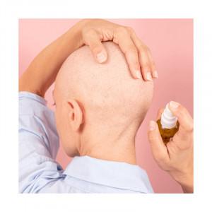 Meme Cosmetics, Lotiune pentru scalp, 100ml_3