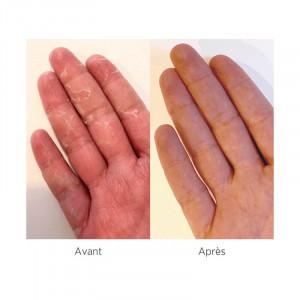 Meme Cosmetics, Manusi hidratante, sindrom mana-picior, piele uscata_6