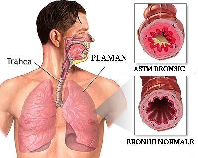 Astmul si rolul alimentatiei in aceasta afectiune