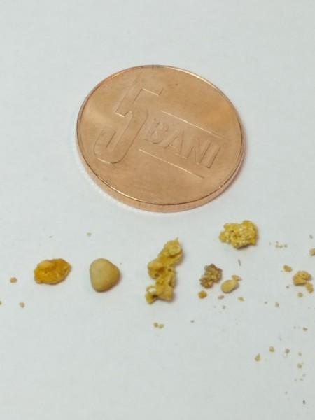 Pietre mari la rinichi (pachet complet pentru eliminarea pietrelor mari sau multiple), Blemaren N + 2 Renoregim - in limita stocului